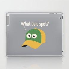 Got You Covered Laptop & iPad Skin