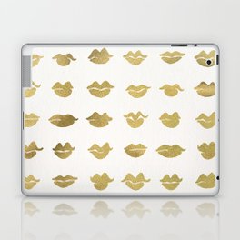 Kiss Collection – Gold Ink Laptop & iPad Skin