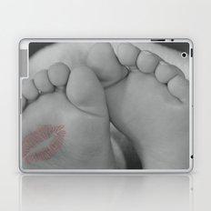 Baby Feet Laptop & iPad Skin