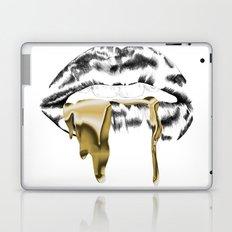 Gucci Laptop & iPad Skin