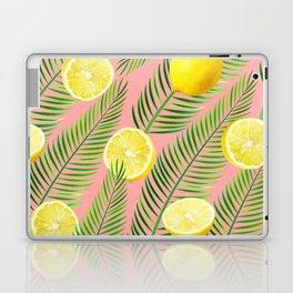 Lemons #society6 #decor #buyart Laptop & iPad Skin