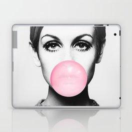 Twiggy print Laptop & iPad Skin
