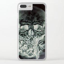 Negative Clear iPhone Case