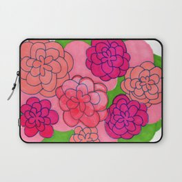 Flower Push 2 Laptop Sleeve