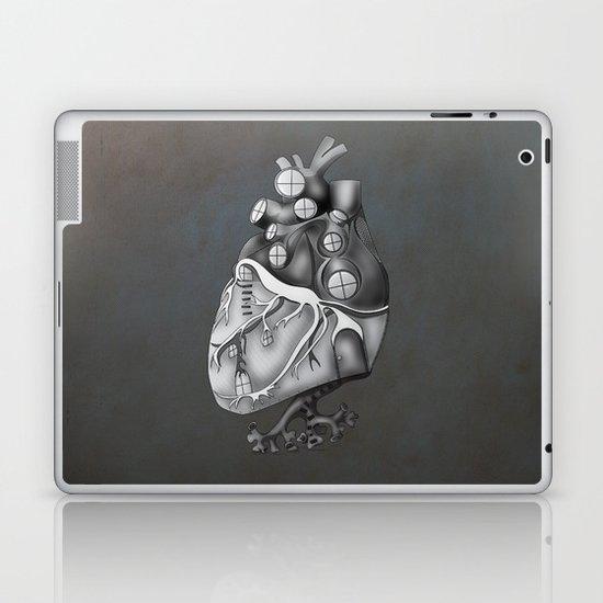 Transplantation I Laptop & iPad Skin