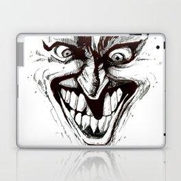 """""""Turn that Smile Upsidedown"""" Laptop & iPad Skin"""