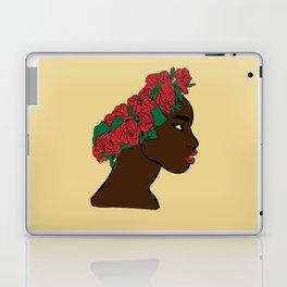 Black is Beautiful Laptop & iPad Skin