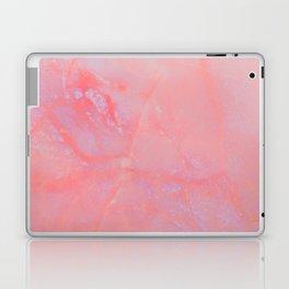 Summer Marble Laptop & iPad Skin