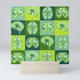 Brain Sections Mini Art Print