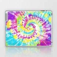 Neon Tie Dye Series 1 Laptop & iPad Skin