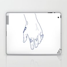 Make My Hands Famous - Part I Laptop & iPad Skin