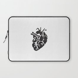 Only Love Laptop Sleeve