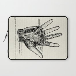 Vintage Anatomy Illustration of the Palm of the Hand Laptop Sleeve