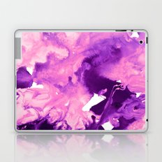 inkblot marble 10 Laptop & iPad Skin