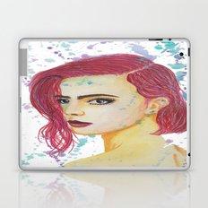 Skittles Laptop & iPad Skin