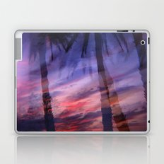 Palms Laptop & iPad Skin