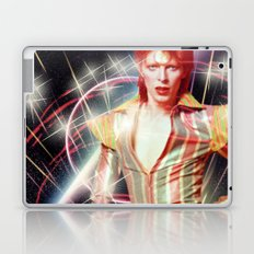 David Bowie - Ziggy stardust Laptop & iPad Skin