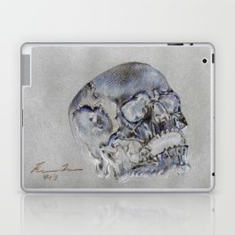 """24 Karat Cranium 2"" Laptop & iPad Skin"