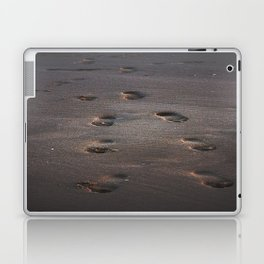 Burn In the Sand Laptop & iPad Skin