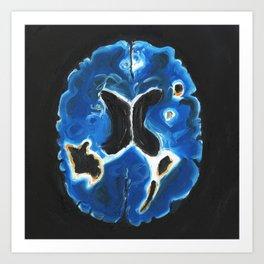 Blue and Orange Brain Scan Art Print