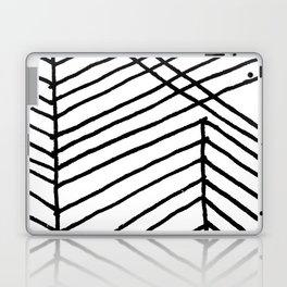 We Laptop & iPad Skin