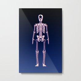 Glitch & Bone Metal Print