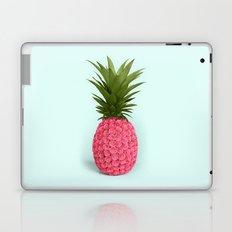 PINEAPPLE ROSES Laptop & iPad Skin