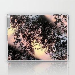 """"""" Intervention """" Laptop & iPad Skin"""