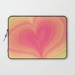 Abstract Tropical Pastel Rainbow Heart Pattern | Valentine's Day Laptop Sleeve