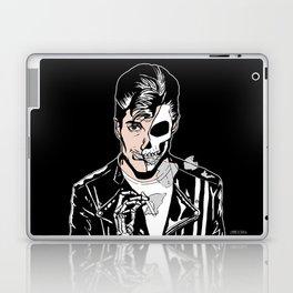 Alex Turner Skull Art by zombieCraig Laptop & iPad Skin