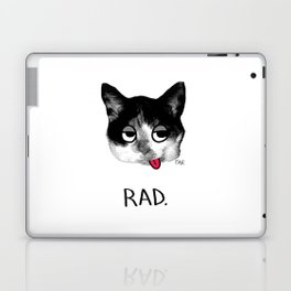 RAD. Laptop & iPad Skin