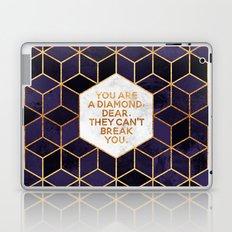 You are a diamond, dear. Laptop & iPad Skin