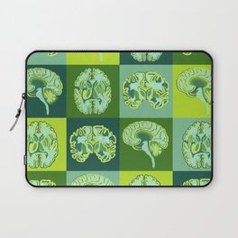 Brain Sections Laptop Sleeve