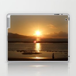 Playa Las Canteras, Gran Canaria, Spain Laptop & iPad Skin