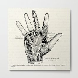 Vintage Anatomy Illustration of the Palm of the Hand Metal Print