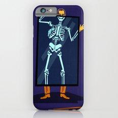 X-Ray iPhone 6s Slim Case