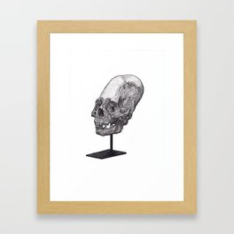 Artificial Cranial Deformation Framed Art Print