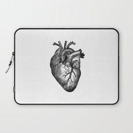 Vintage Heart Anatomy Laptop Sleeve