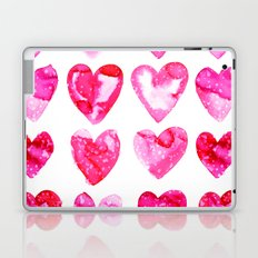 Heart Speckle Laptop & iPad Skin