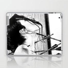 asc 778 - La lione blessée (Love is a killer) Laptop & iPad Skin