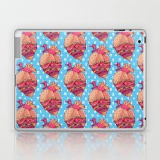 Inner Fast Food Laptop & iPad Skin