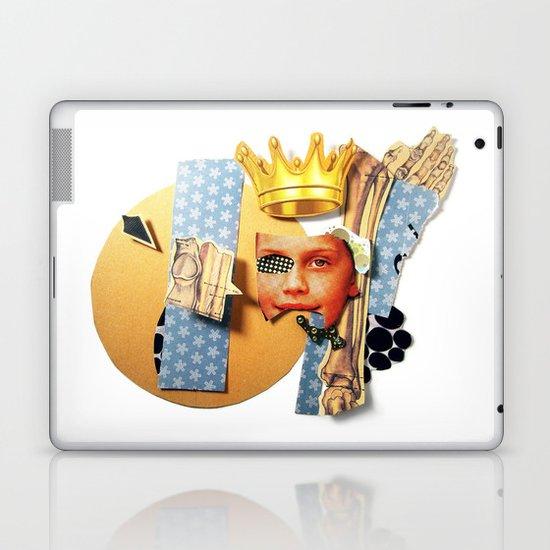 Skin Deep   Collage Laptop & iPad Skin
