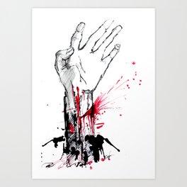 Crippled Hand Art Print