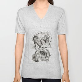 Human Anatomy Art Print BRAIN SKULL DISSECTION Vintage Anatomy, doctor medical art, Antique Book Pla Unisex V-Neck