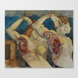Maladie du Coeur Canvas Print