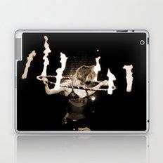 When Will They Burn? Laptop & iPad Skin
