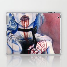 Frostbite  Laptop & iPad Skin