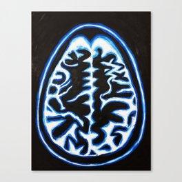 Blue Brain Scan Canvas Print