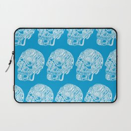 Death by water Laptop Sleeve