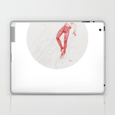 Circuitry Surgery 2 Laptop & iPad Skin